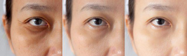 絲芭玻尿酸局部睡眠修護面膜